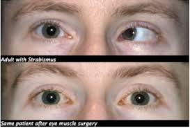 استرابیسم(انحراف چشم)