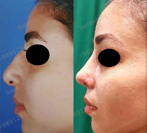 جراحی بینی - دکتر نوید رضوانی - گردشگری سلامت سورن طب رازی