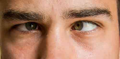 انحراف چشم و روش های درمانی