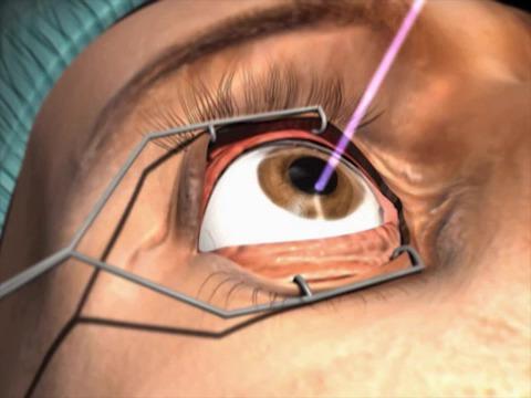 عمل پی آر کی (PRK) چشم
